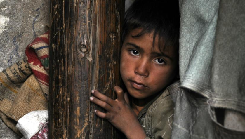 यमन के पीड़ित बच्चों की चीखने की आवाज़ ऊपर तक पहुंचती है!