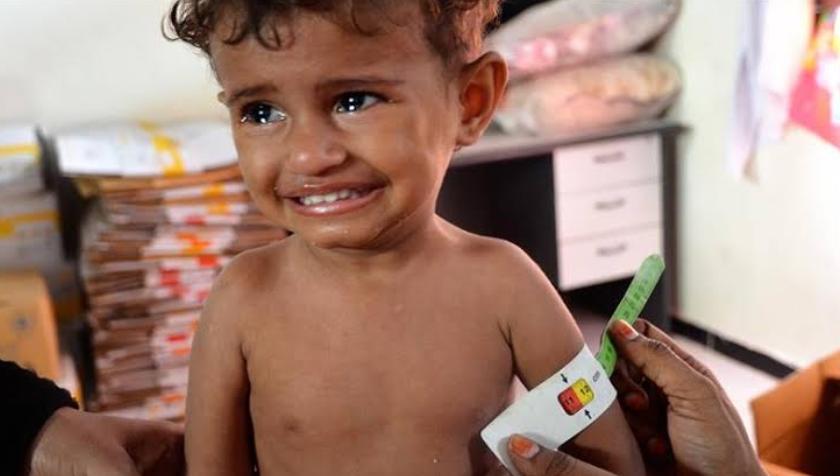 यमन की ज़ग में अब तक 85 हजार बच्चों की मौत हुई!